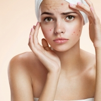 acne cliniderma