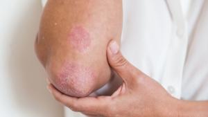 tratar a tiempo el acné, La importancia de tratar a tiempo el acné en adolescentes, Cliniderma 🥇