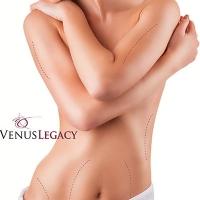 VENUS-LEGACY