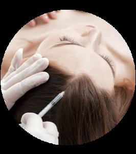 mesoterapia capilar, Mesoterapia Capilar, Cliniderma 🥇