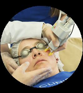rejuvenecer el rostro, Rejuvenecimiento Facial, Cliniderma 🥇, Cliniderma 🥇