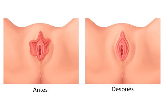 , Rejuvenecimiento vaginal, Cliniderma 🥇